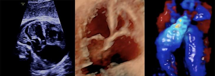 Fetal Echardiography