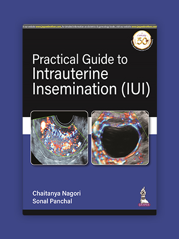 Practical Guide to Intrauterine Insemination (IUI)